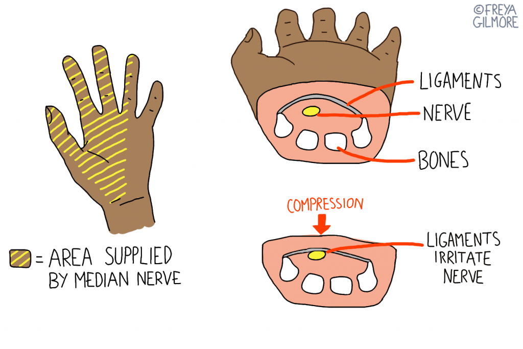 Carpal tunnel syndrome: compression of the medial nerve is more likely during pregnancy