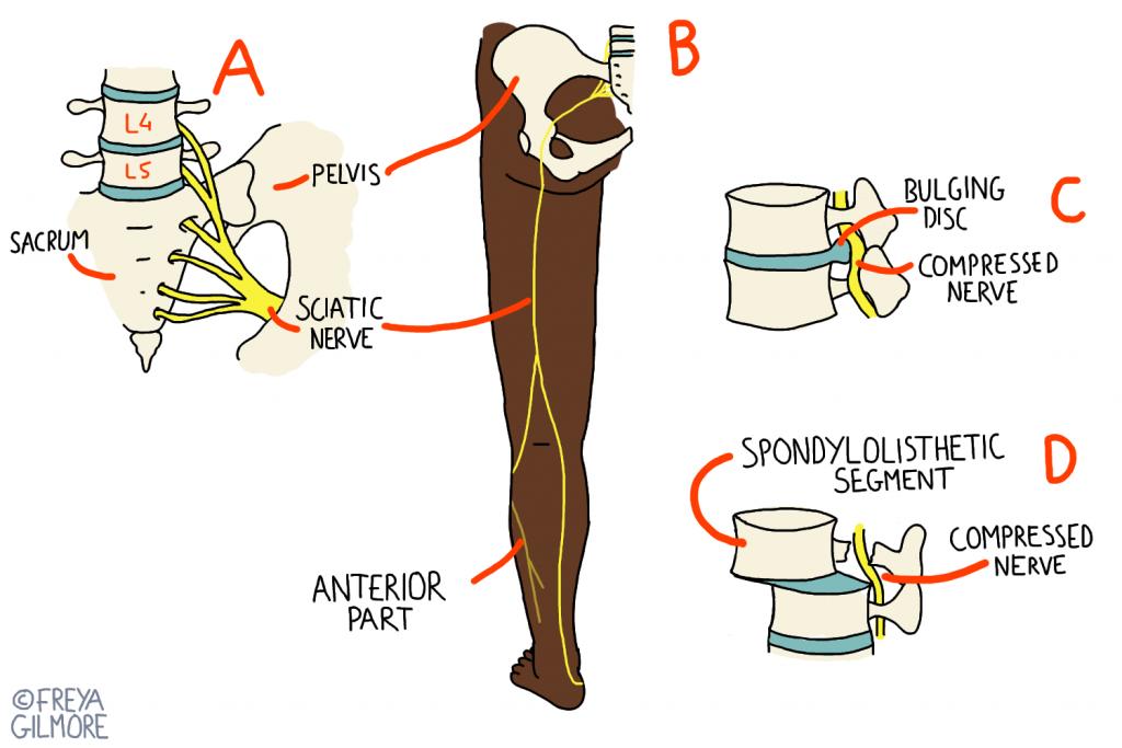 Causes of sciatica