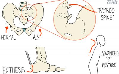 Ankylosing Spondylitis and AxSpA