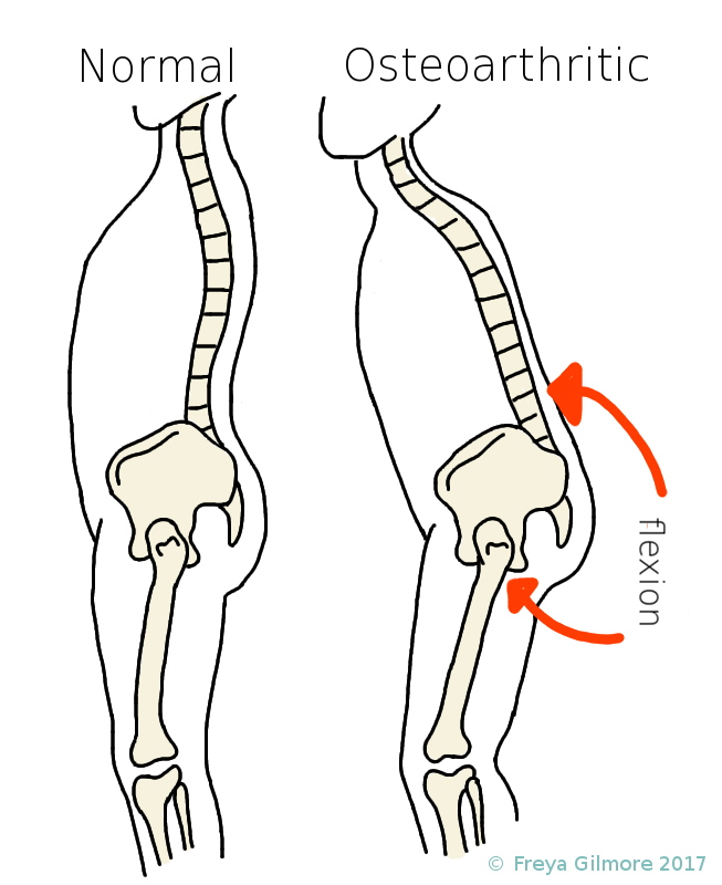 Arthritis in the hip and its effects on general posture