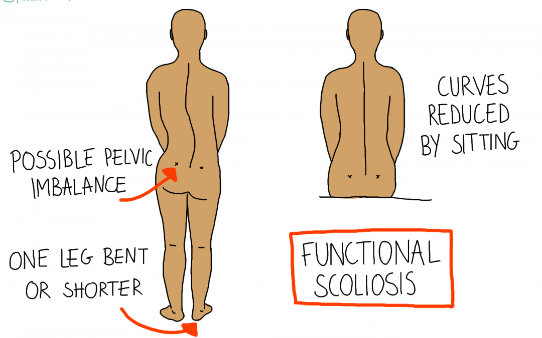 Scoliosis and Osteopathy