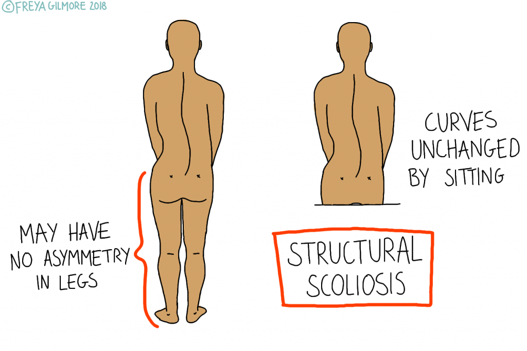 Structural scoliosis