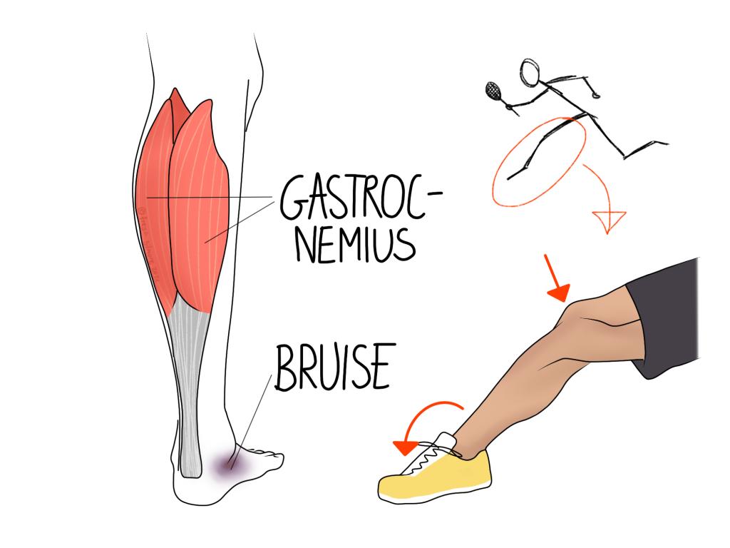 Tennis leg: an upper calf injury
